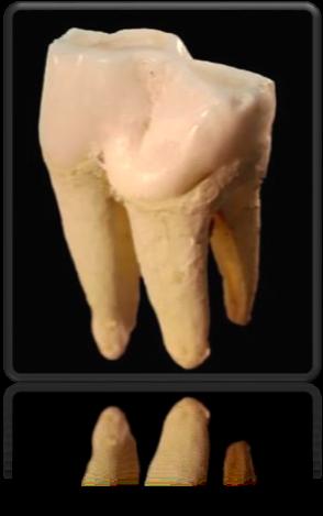 Cabinet de dentistes à Beausoleil - vidéo